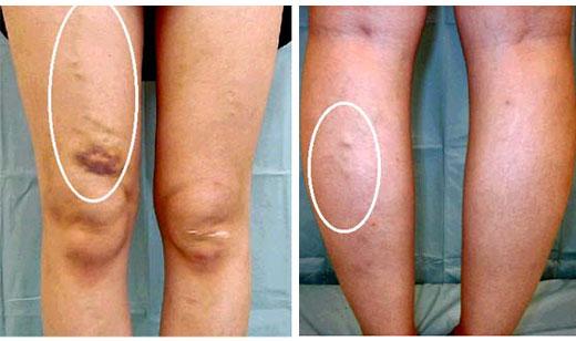 下肢静脈瘤について:静脈瘤・血...